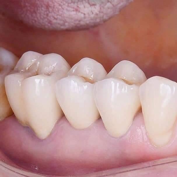 Lấy tủy răng - Nha khoa An Khang