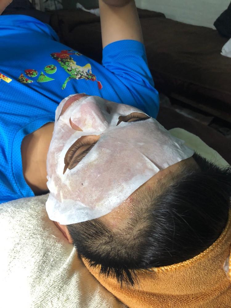 Thanh lọc da cùng nạ CO2: lấy mụn chuẩn y khoa
